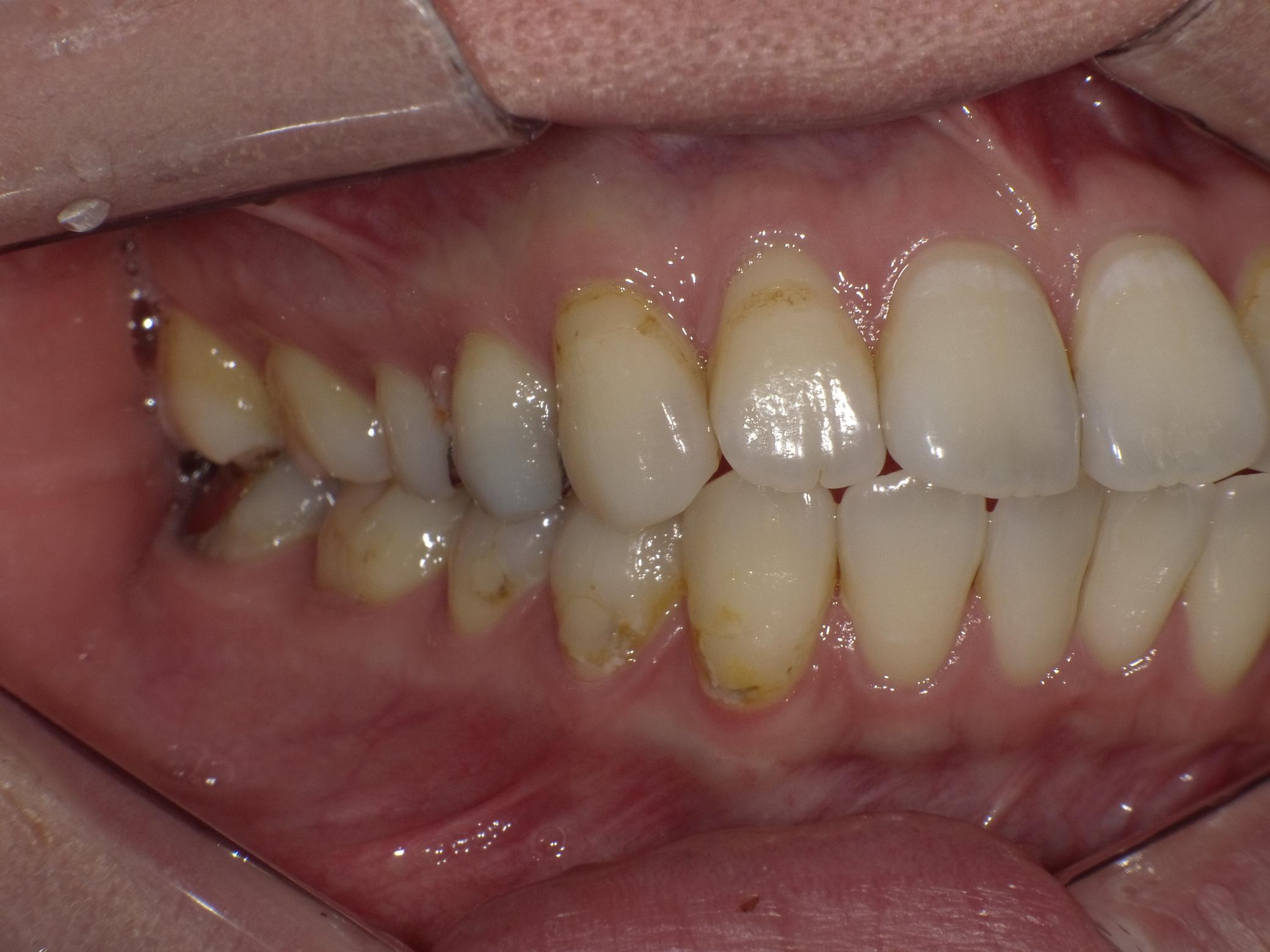 虫歯before
