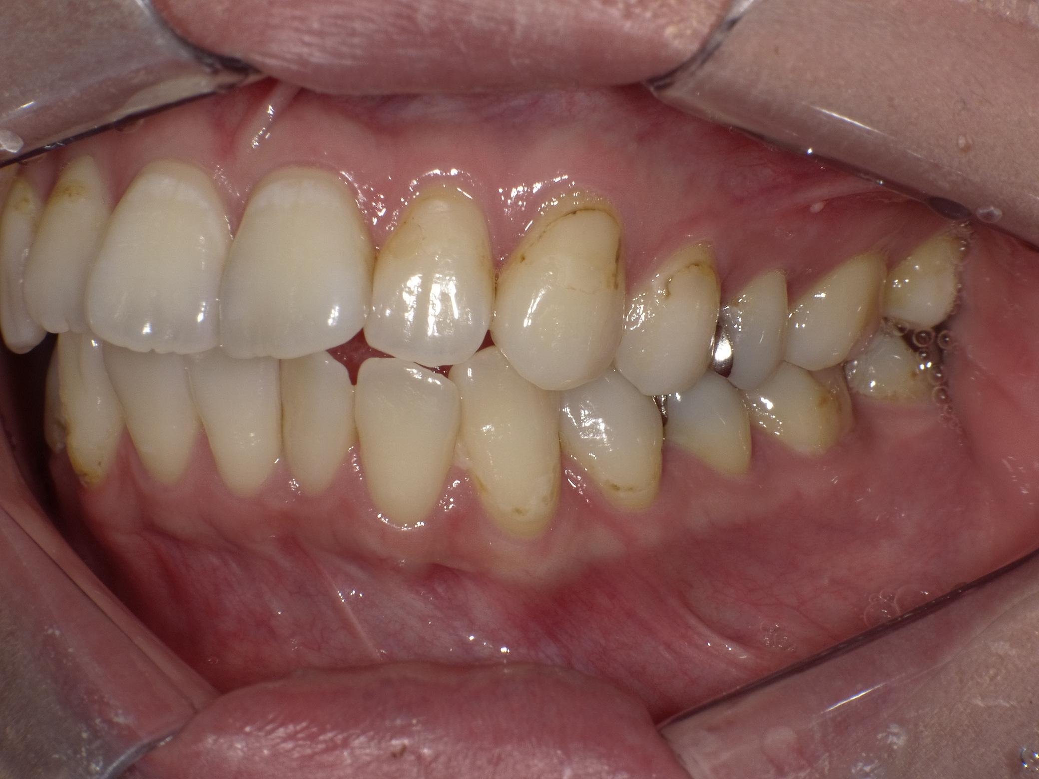 虫歯before2