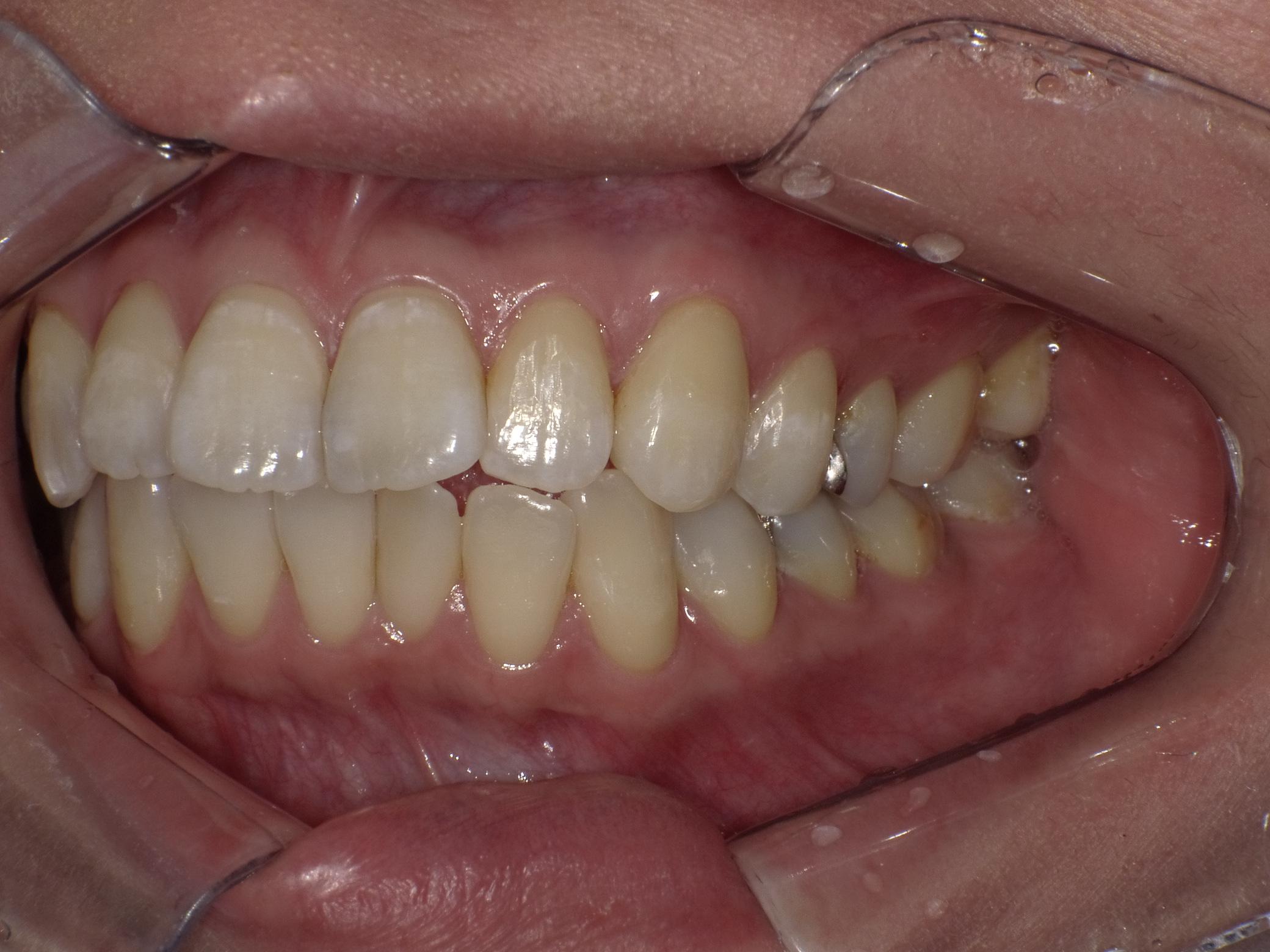 虫歯after